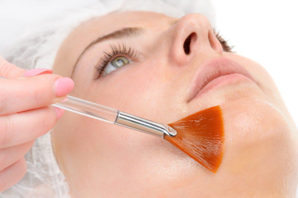 chemical skin peel